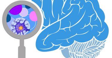Поглед у мозак (НСФ)