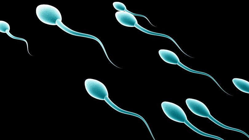 Мањак сперматозоида (Википедија)