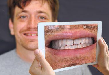 Digitalni prikaz (Kapanu)