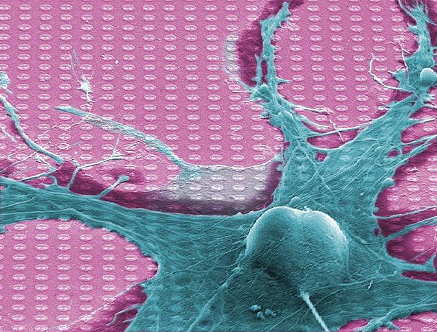 Usamljeni neuron (Vikipedija)
