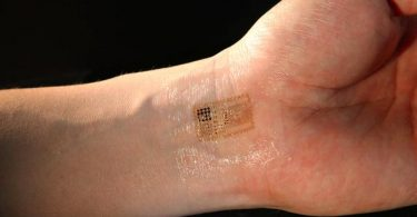 Рука с чипом (Википедија)