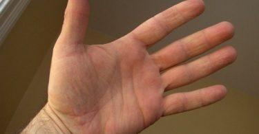Otvoreni dlan (Vikipedija)